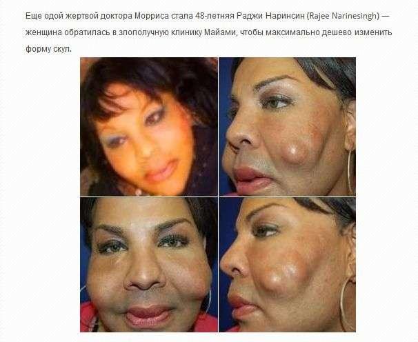 Жертви пластичної хірургії (36 фото)