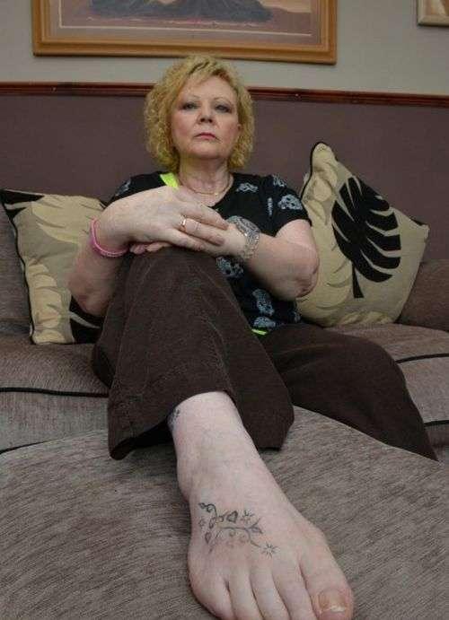 Туристка мало не втратила ноги через татуювання (7 фото)